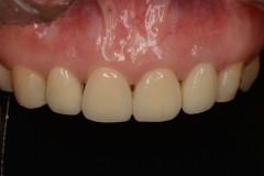 前歯セラミック