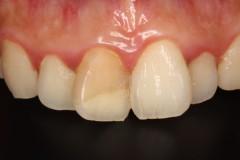 前歯セラミックス術前