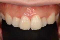 前歯セラミックス